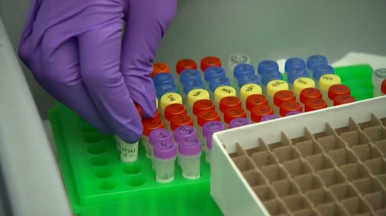 Guyana sends samples to CARPHA for testing for COVID variants
