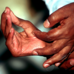 50 new cases of leprosy per year worries health officials
