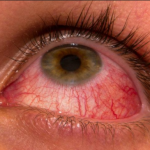 Red eye cases could be treated at health centres
