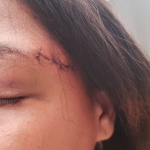Woman who attacked teacher now under probe for attack on husband's university classmate