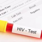 Guyana sees slight decrease in HIV prevalence rate