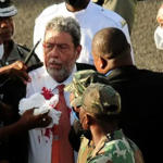 St. Vincent PM seeking medical attention in Barbados after protest injury